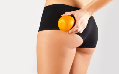 Anti-cellulite regimen: 6 rules for smooth skin