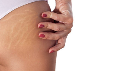 Understanding, preventing and treating stretch marks