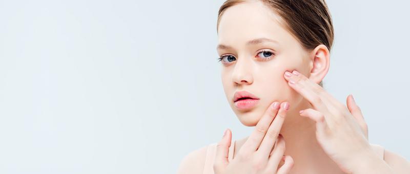 Acné d'Ado : 3 étapes pour reprendre le contrôle de ta peau